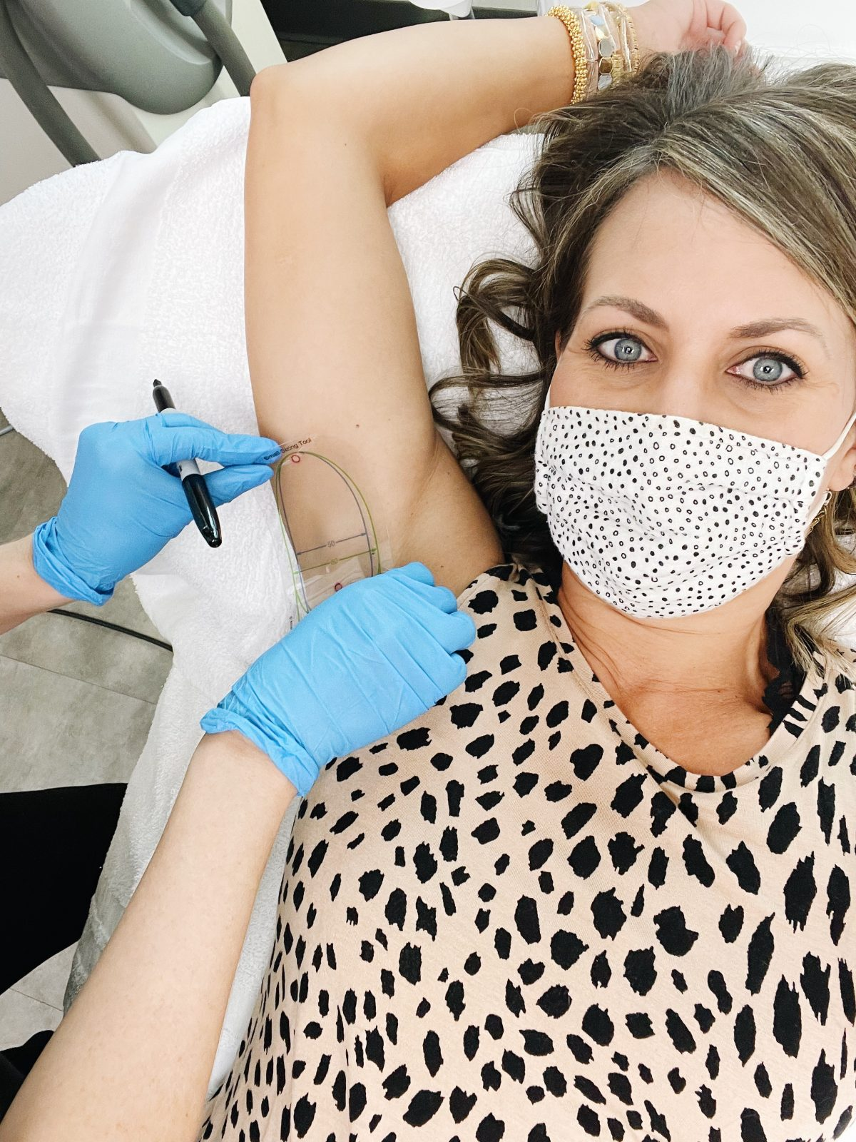 miradry treatment to reduce sweating and underarm odor. marking the treatment area