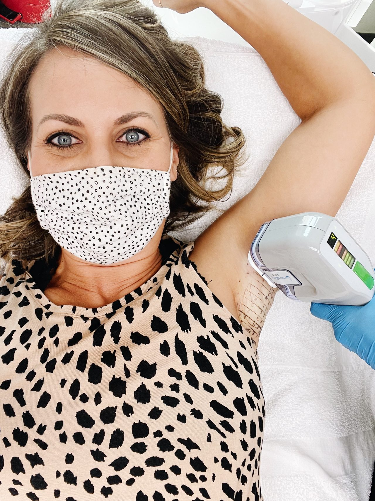 miradry treatment to reduce sweating and underarm odor