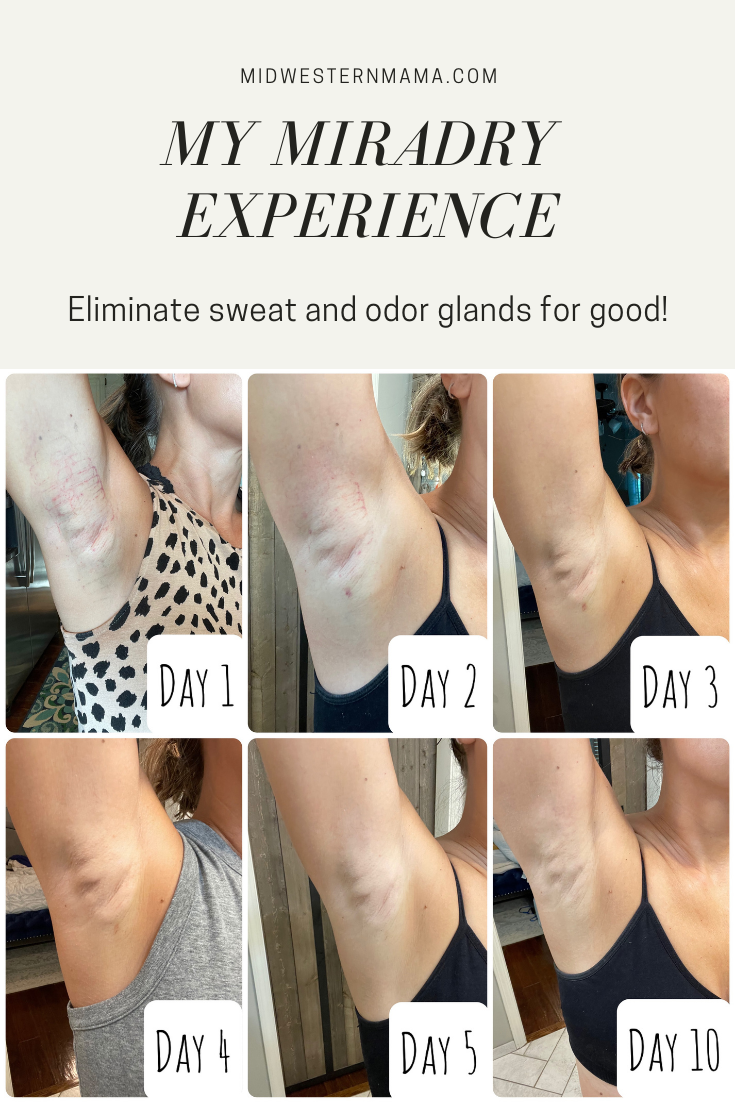 day by day photos showing progression of miradry treatment to reduce underarm sweat and odor